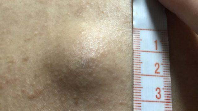 表皮嚢腫 直径3cm