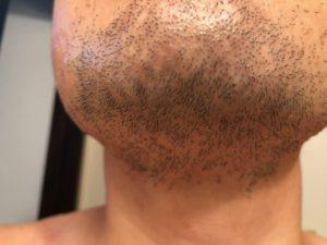 脱毛の治療の直後