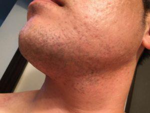 脱毛の治療 1日後