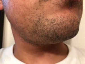 脱毛開始前 髭剃り1日後